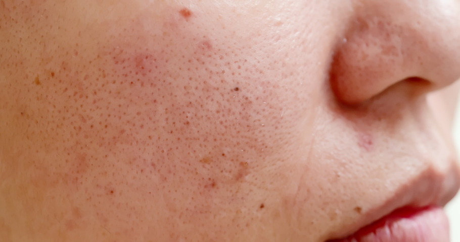 Close up of acne on the woman face   Shutterstock HD Video #1038534206