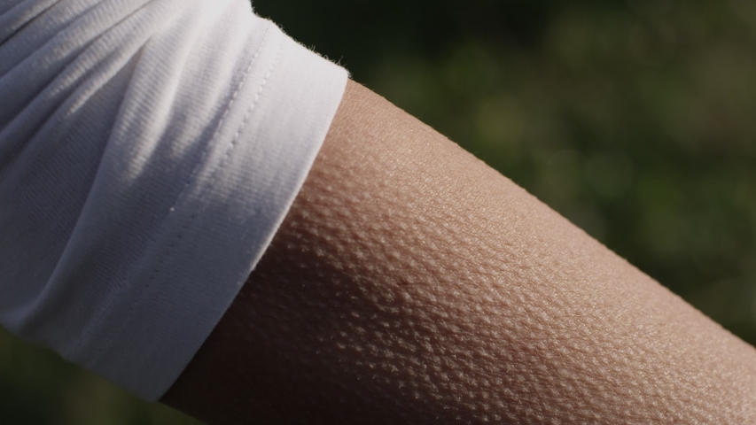 Goosebumps on female arm with summer green background   Shutterstock HD Video #1038817193