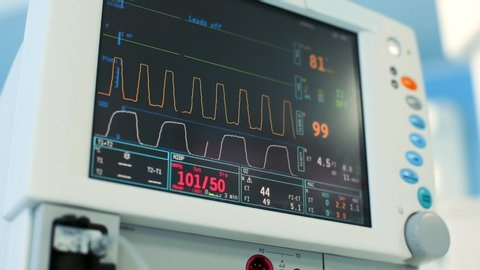 Digital heart monitor read out close up with lines graphing and numbers displayed of patient being measured. The digital cardiac monitor reads closely with the line graph and the displayed patient