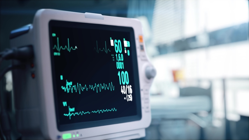 Heart rate monitor in hospital theater. Medical vital signs monitor instrument in a hospital on anesthesia surgery monitor. ECG. Patient heartbeat at the screen