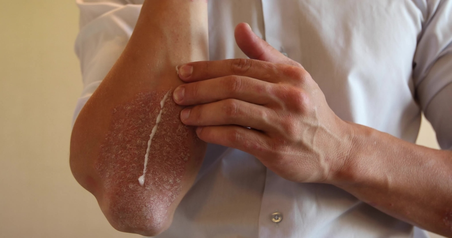 The use of emollient for dry flaky skin, as in the treatment of psoriasis, eczema and other diseases of dry skin | Shutterstock HD Video #1039962986