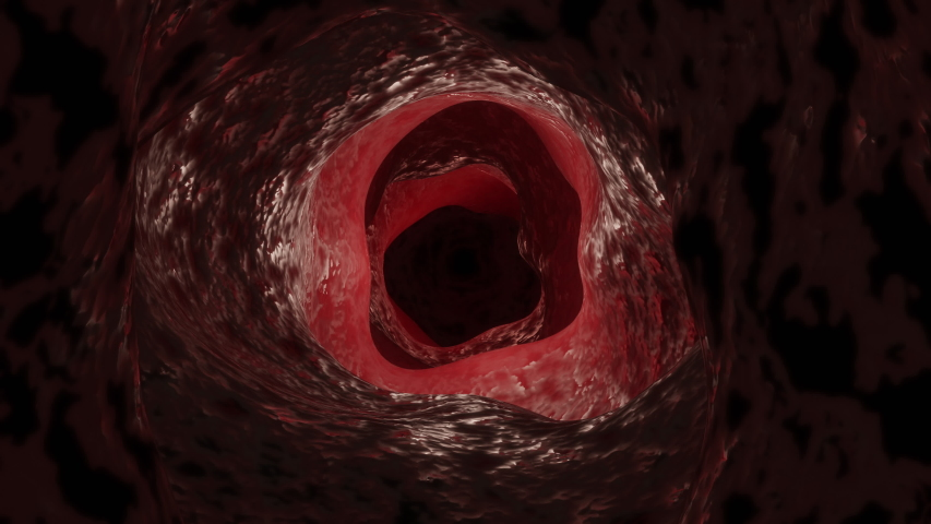4K Footage , 3D Rendering internal organ , inside intestine