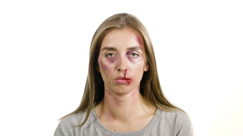 Portrait of a girl on a white background with bruises and abrasions after domestic violence | Shutterstock HD Video #1041774121