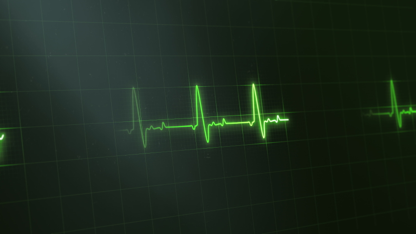 Green colored heart rate or heart beat line. Cardiogram signal monitoring process. Isolated on black. Patient's vital signs. EKG, ECG curve. Pulse measuring. Medical 4K footage. Cardiology
