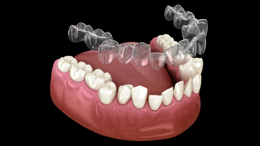 Invisalign braces or invisible retainer make bite correction. Medically accurate 3D animation | Shutterstock HD Video #1045765933