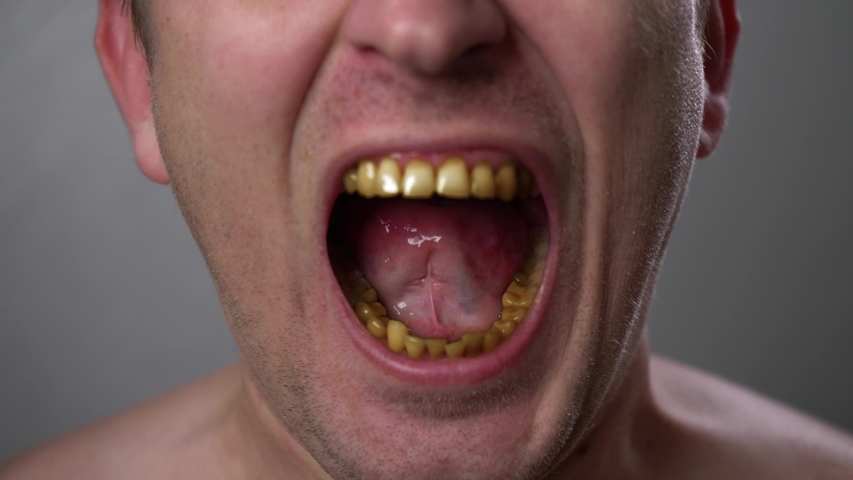 A man with yellow teeth aggressively grins. Close-up smoker's teeth. Negative emotions on the face. Anger emotions. Anger. Violence. Tooth disease. | Shutterstock HD Video #1046942827