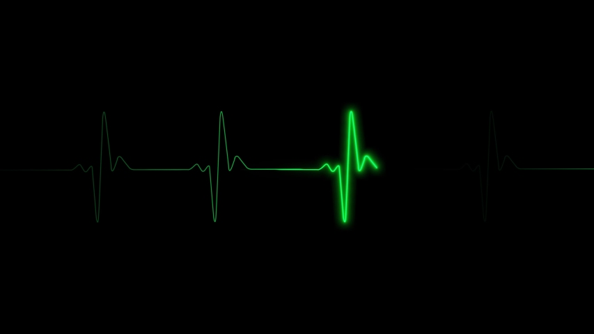 Heart rate ekg monitor in hospital theater. Medical vital signs monitor instrument in a hospital on anesthesia surgery monitor. ECG. Patient heartbeat at the screen animation
