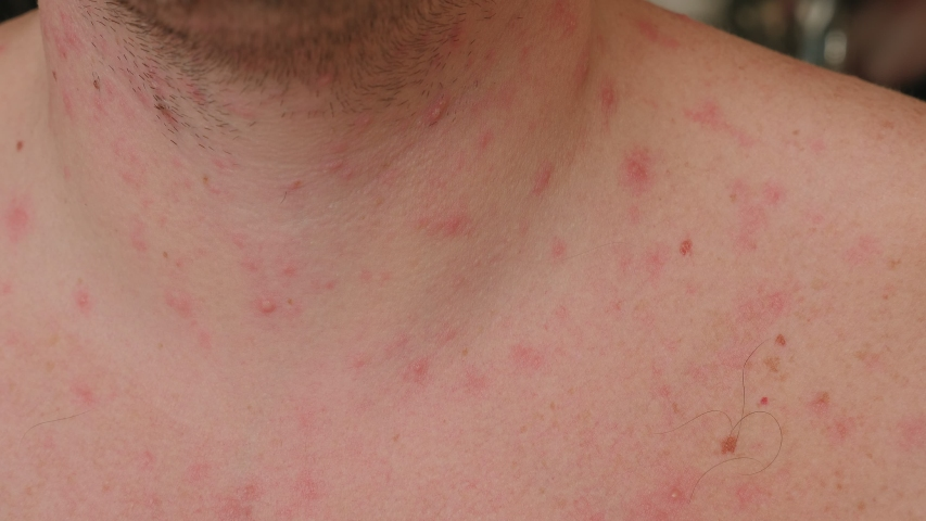 Close-up of skin with red rashes from chickenpox. The neck and chest of an adult male with blisters from chickenpox. Man is chickenpox, he problematic skin and scars from acne.   Shutterstock HD Video #1047531781