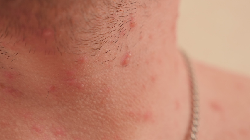 Close-up of many red rashes in chickenpox on the skin of an adult male. A sick man with a lot of rashes on the skin of the face, neck and chest. | Shutterstock HD Video #1047753976