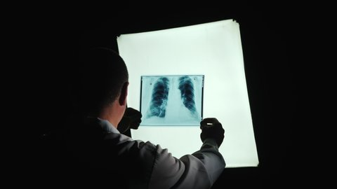 The silhouette of the doctor, studying the Patient's X-ray