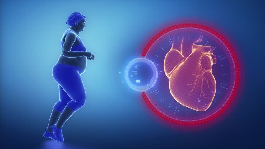 Obese woman heart problem