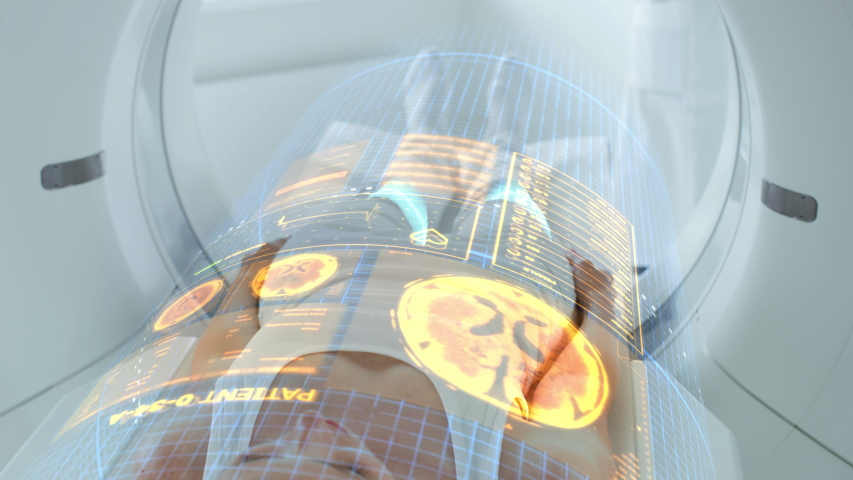 Female Patient Lying on CT or PET or MRI Scan Bed, Moving Inside the Machine While it Scans Her Brain and Vital Parameters. Augmented Reality Concept with VFX In Medical Lab with High-Tech Equipment. | Shutterstock HD Video #1048246471