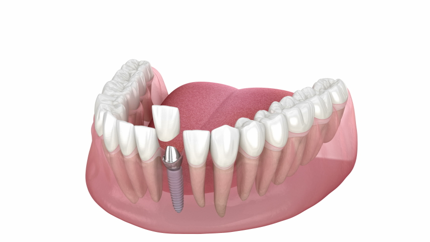 Ceramic crown, custom implant abutment and implantat instalation process. Medically accurate 3D animation of dental implantation