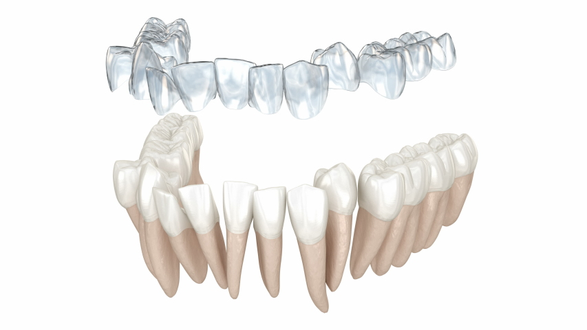 Invisalign braces or invisible retainer make bite correction. Medically accurate 3D animation Royalty-Free Stock Footage #1048924435