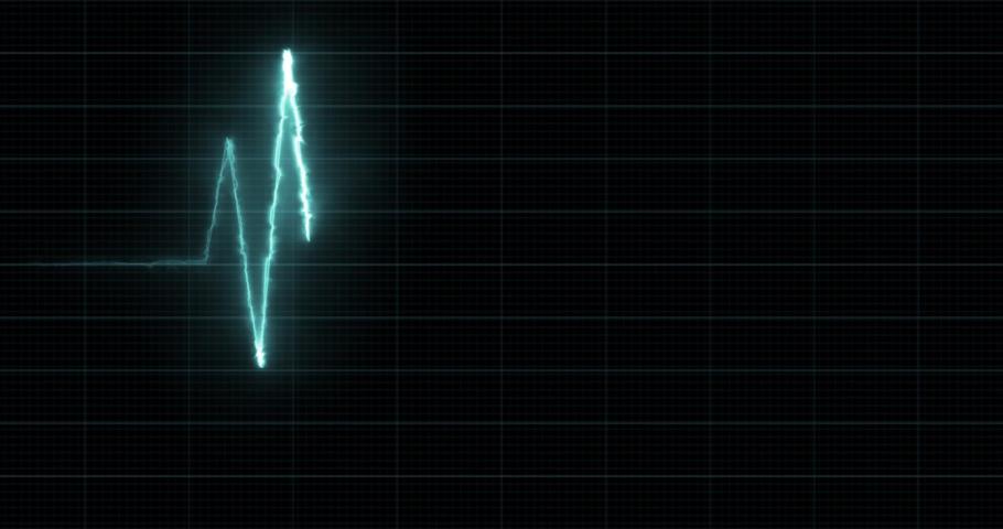 EKG - Heartbeat Display Monitor - Motion Graphics, HUD Element