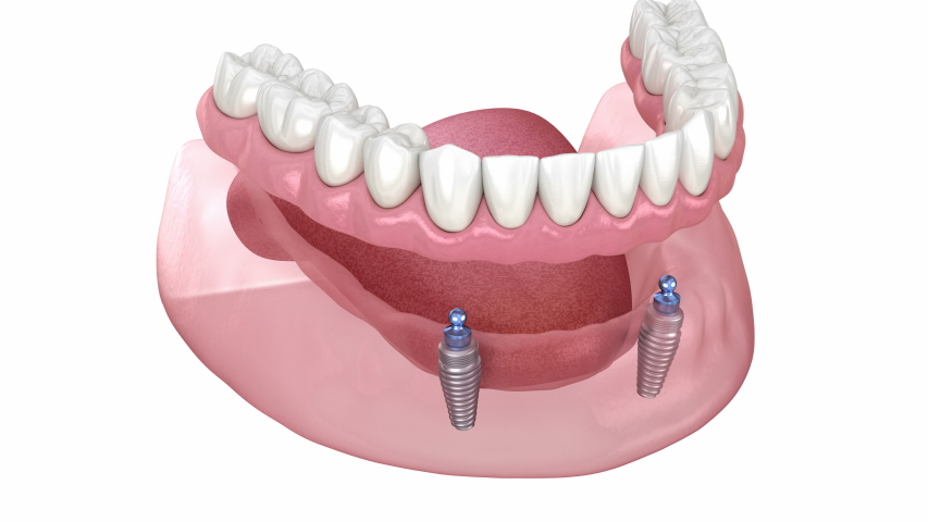 Mandibular removable prosthesis All on 2 system supported by implants with ball attachments. Medically accurate dental 3D animation.