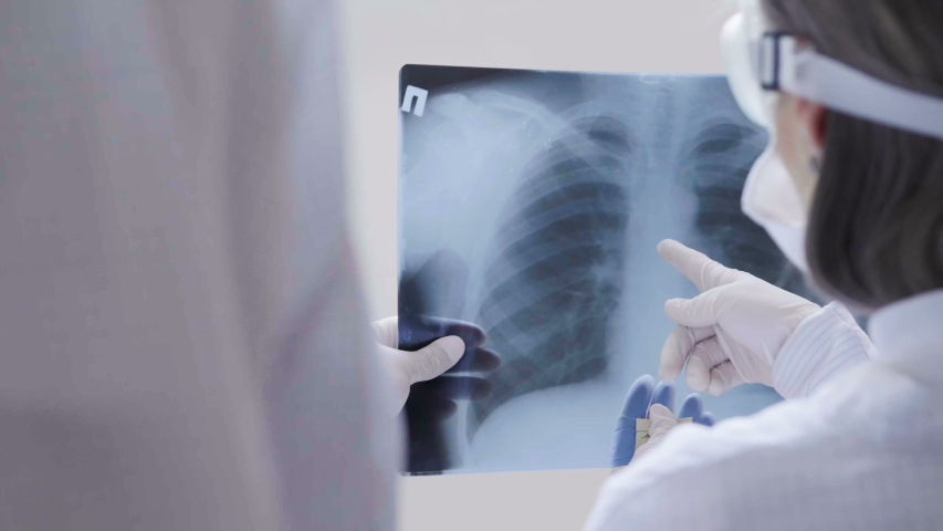 Doctors standing on white background examine x-ray for pneumonia of a Covid-19 patient in the clinic. Coronavirus concept Royalty-Free Stock Footage #1049917414