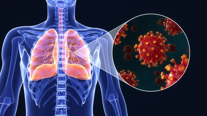 Medical animation of SARS-CoV-2 coronavirus infected lungs causing diffuculty in breathing or pneumonia or othercovid-19 related lung disease. Realistic high quality 3d medical animation. Royalty-Free Stock Footage #1050071239