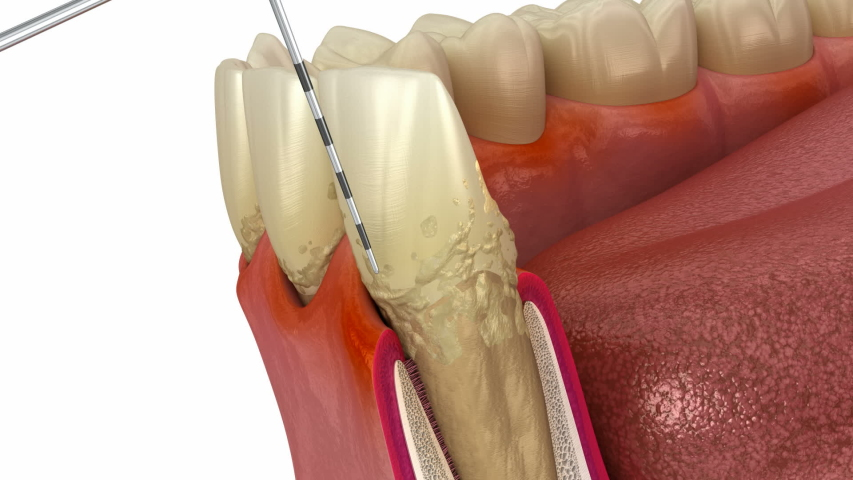 Periodontitis testing, gum recession process. Medically accurate 3D animation Royalty-Free Stock Footage #1050486808