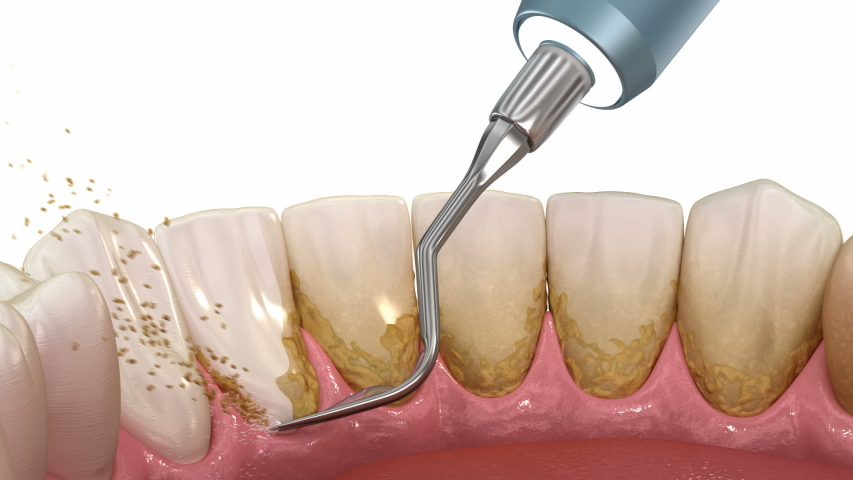 Oral hygiene: Teeth Cleaning Ultrasonic Scaling (conventional periodontal therapy). Medically accurate 3D animation of human teeth treatment Royalty-Free Stock Footage #1050699007