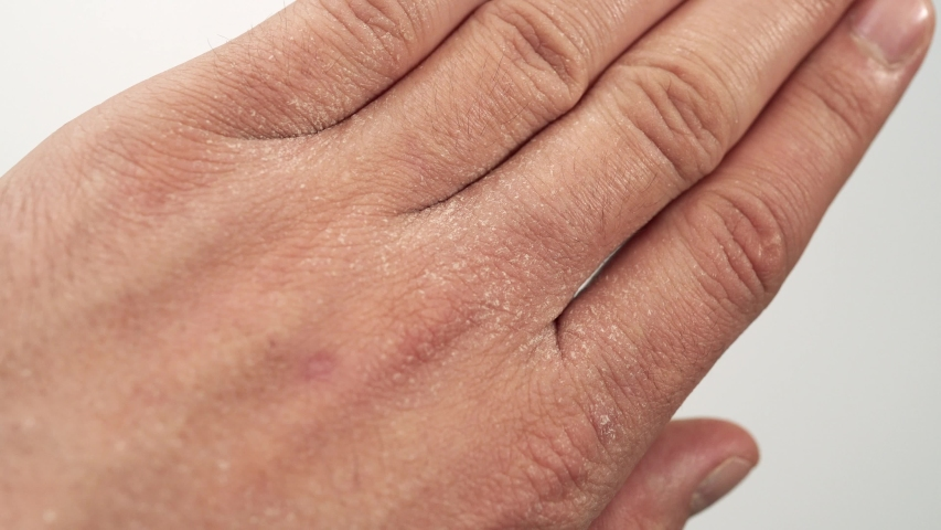 Close-up of a Caucasian man moisturizing his hands with extremely dry and cracked skin due to the use of disinfectant solution. Dehydrated chapped hands, dermatitis disease, skin rashes. | Shutterstock HD Video #1051034620