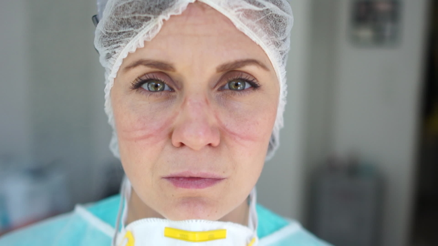 Female doctor during a coronavirus pandemic covid-19 takes off glasses and a protective mask, face marks are visible from the mask, red spots. Close portrait of a tired doctor Royalty-Free Stock Footage #1051525255