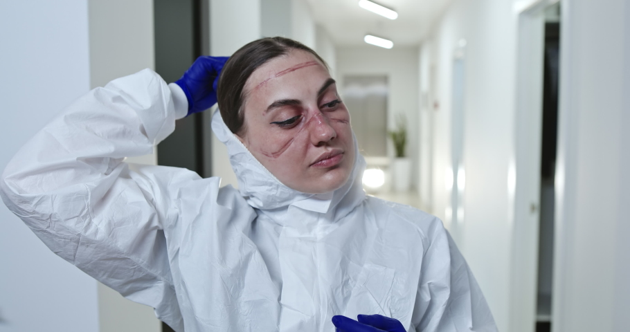 Tired female coronavirus health worker with face scars from protective uniform taking off hood after overwork with patients coronavirus infected in modern hospital. Respiratory virus, covid-19 concept | Shutterstock HD Video #1052122567