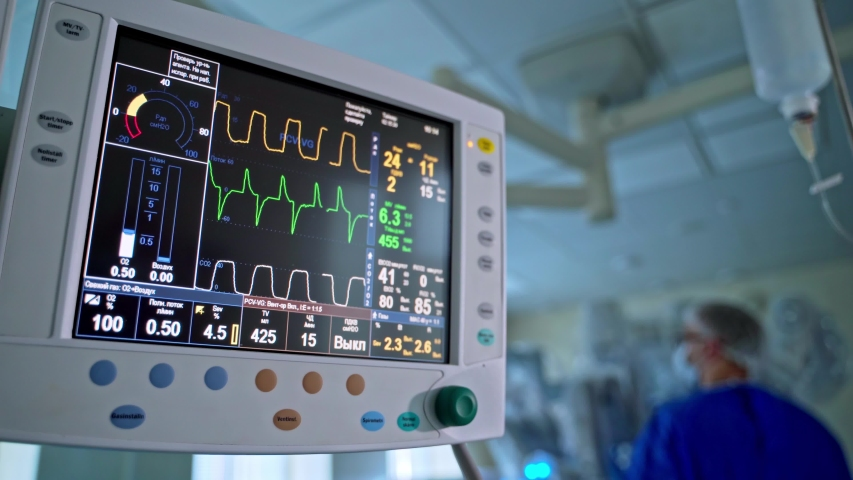 Modern medical operation room with monitor. Graphic lines on the screen of monitor to show heart ecg about the patient's condition during the operation.   Shutterstock HD Video #1052717504