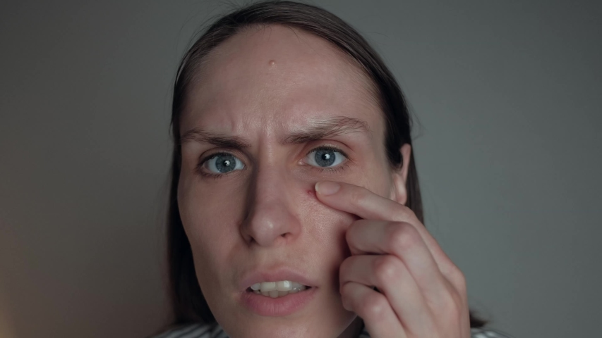 Acne pimple skin blemish spot skin care girl. Young displeased woman discovers large pimple on her face, squeezing it. | Shutterstock HD Video #1052777681