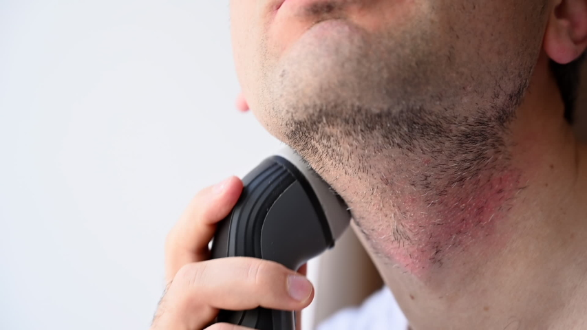 Man shaving with an electrical shave leaving irritated red skin, slow motion | Shutterstock HD Video #1052805509