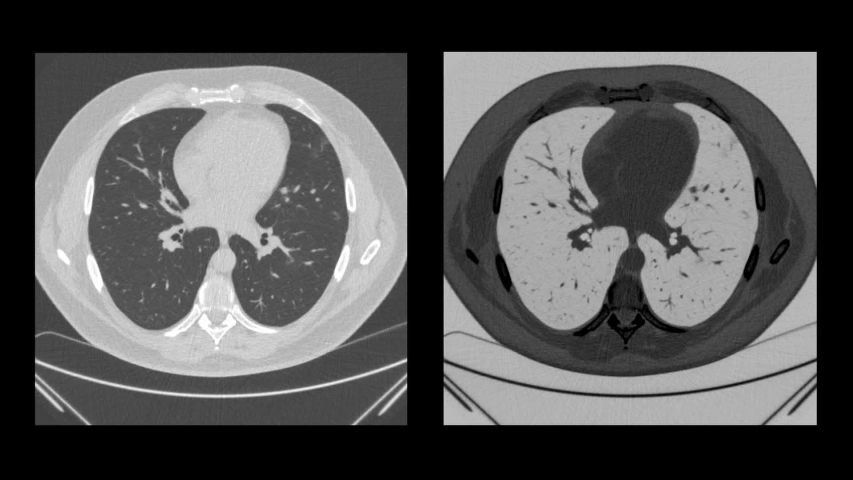 Chest ct scan, Radiological computed tomography of the lungs for research on coronavirus infection Covid-19. CT scan animation of the results in the original and inverse view