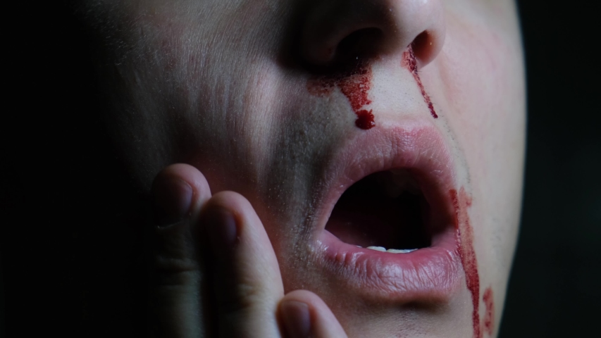 A man with nosebleed on his face is in pain, close-up | Shutterstock HD Video #1053055424