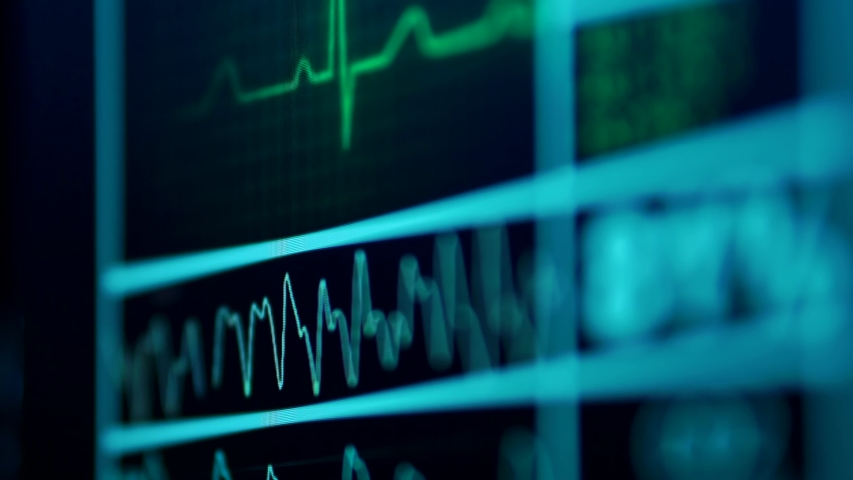 Cinematic Close-Up Of Heart Rate Monitor In Hospital Royalty-Free Stock Footage #1053069782