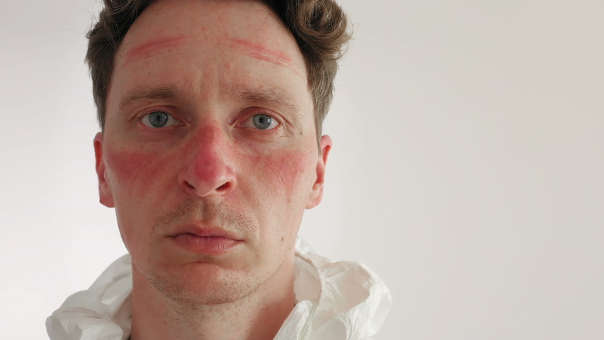 Male Nurse with Face Bruised and  Rubbed Raw by Face Mask. Closeup Portrait   Shutterstock HD Video #1054032563