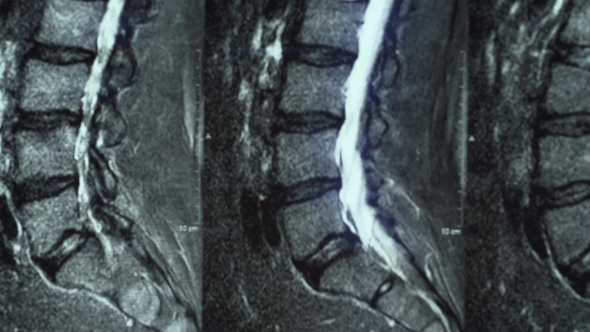 Macro panorama of MRI of lumbar spine with osteochondrosis, age-related changes in discs of vertebrae and pinched nerves Royalty-Free Stock Footage #1054043057