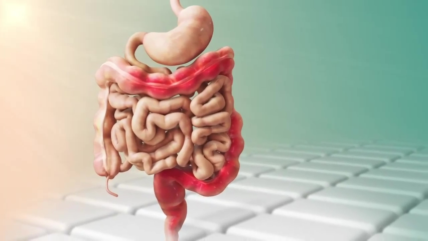 Ulcerative colitis, inflammation of the mucosa of the inner side of the colon | Shutterstock HD Video #1054487957