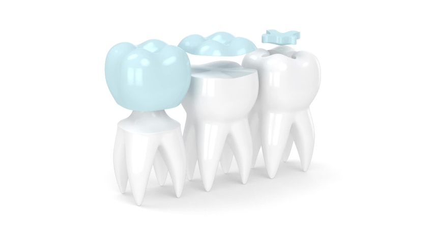Teeth in jaw with three different types of dental filling Royalty-Free Stock Footage #1054545647