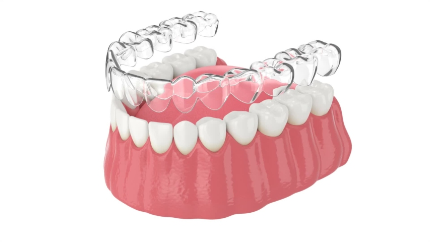 Invisalign removable and invisible retainer placement on lower jaw over white background