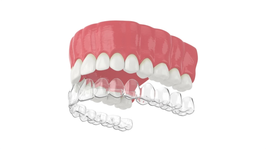 Invisalign removable and invisible retainer placement on upper jaw over white background