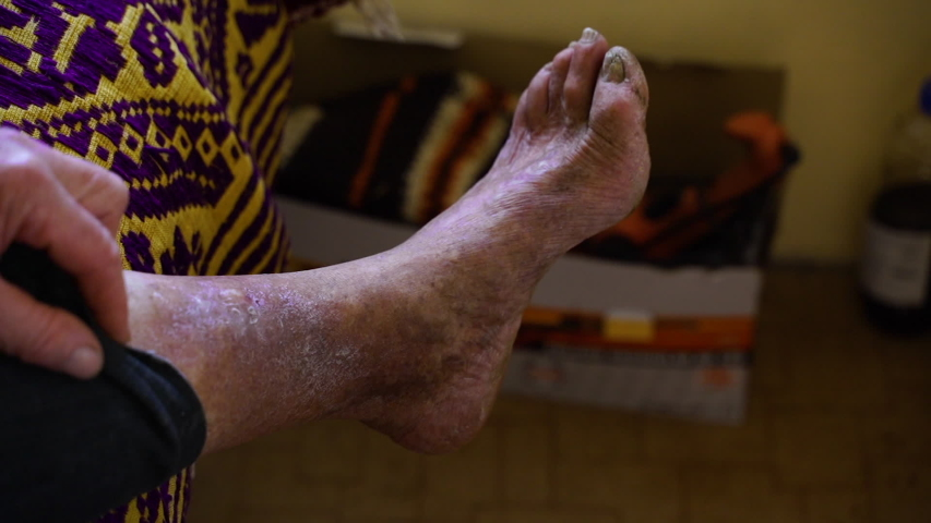 A very sick leg of an old man | Shutterstock HD Video #1054726691