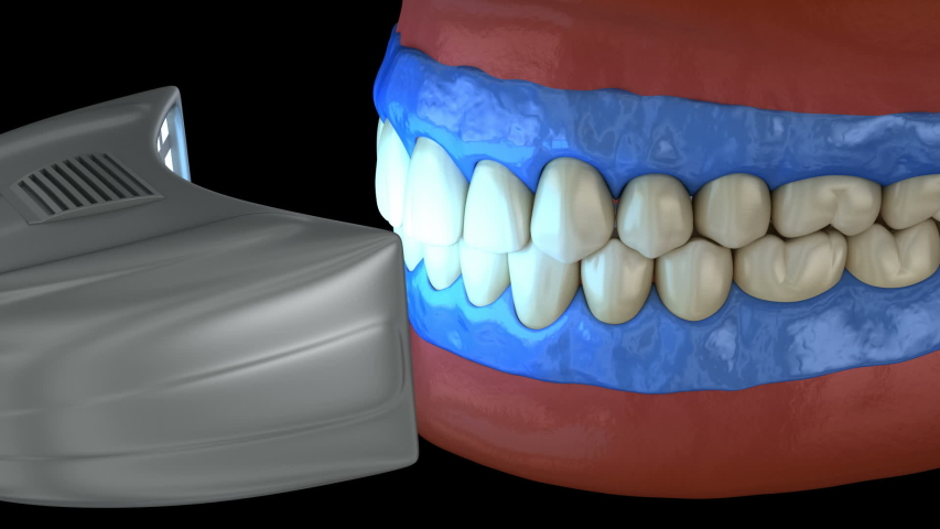 Proffesioinal teeth whitening, light-activation on tooth bleaching. 3D animation concept. Royalty-Free Stock Footage #1054809029