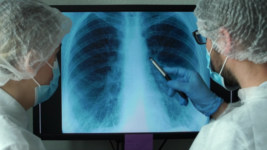 Team of doctors at computer monitor in clinic discuss x-ray of patient with lung pneumonia caused by infection. Lungs are affected by virus. COVID-19 Royalty-Free Stock Footage #1054846802
