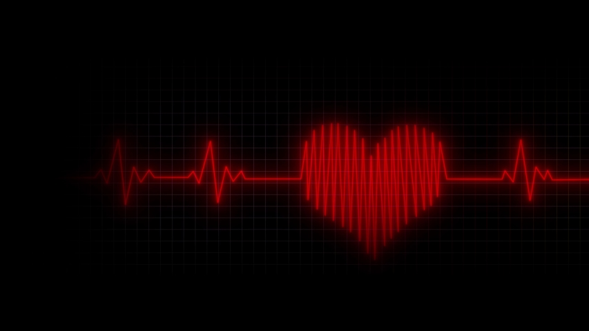 Heart Rhythm Background 4K Heartbeat monitor EKG line monitor shows heartthrob, Seamlessly loop electrocardiogram medical screen with a graph of heart rhythm on black background