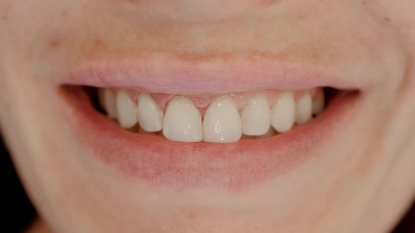 Smile healthy teeth concept. Smiling female mouth with natural white teeth selective focus. Close up of smiling woman with perfect smile slow motion | Shutterstock HD Video #1055214089