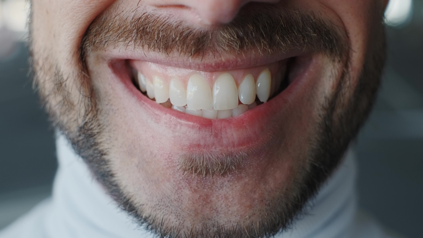 Close up of smiling teeth isolated. Detail of a smile bearded man. Young successful man is smiling on bokeh background. | Shutterstock HD Video #1055363495