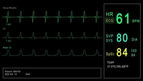 Looped: Patient monitor displays vital signs ECG electrocardiogram EKG, oxygen saturation SPO2 and respiration. Medical examination. 4K video footage animation. Cardiac monitoring. Electrocardiography