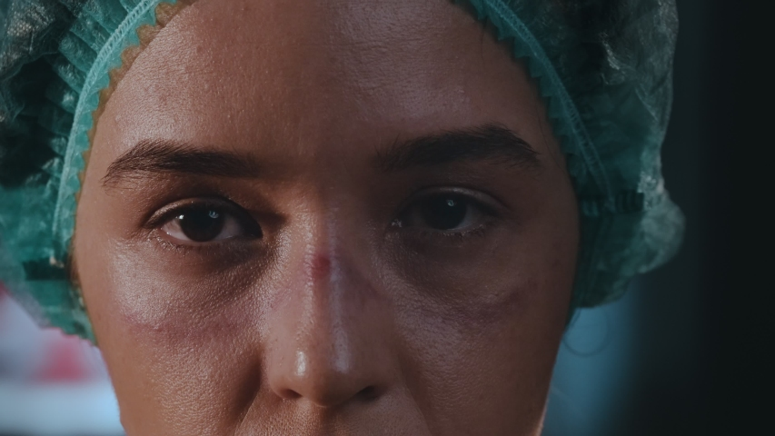 Female doctor after shift in hospital during new coronavirus pandemic, has tired look, facial abrasions up to deep wounds from KN95 protective mask and medical goggles, eyes are closed from fatigue