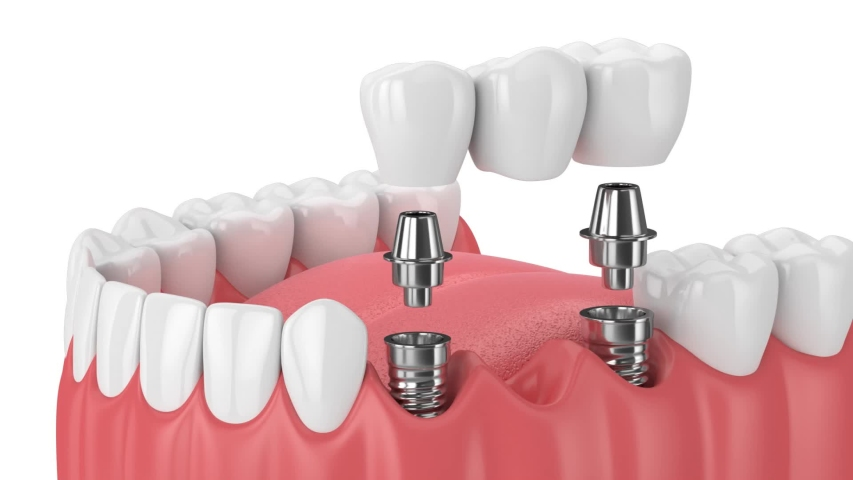 Jaw with implants supporting dental bridge over white background