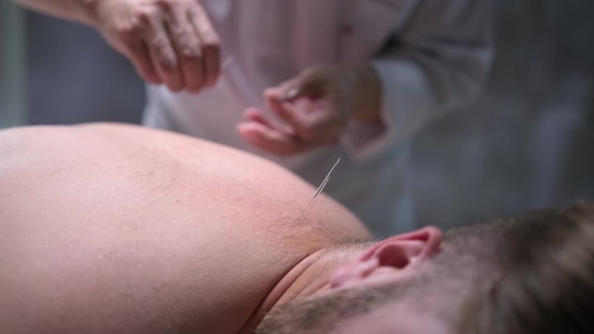 Acupuncture procedure. The doctor sticks needles in the man's back. Traditional Chinese Medicine. 4K
