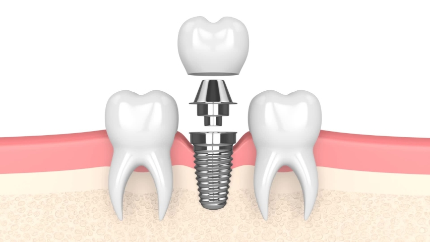 Dental implant placement  over white background Royalty-Free Stock Footage #1057846105